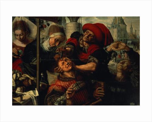 The Surgeon by Jan Sanders van Hemessen