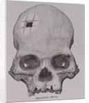 Trepanned Skull by English School
