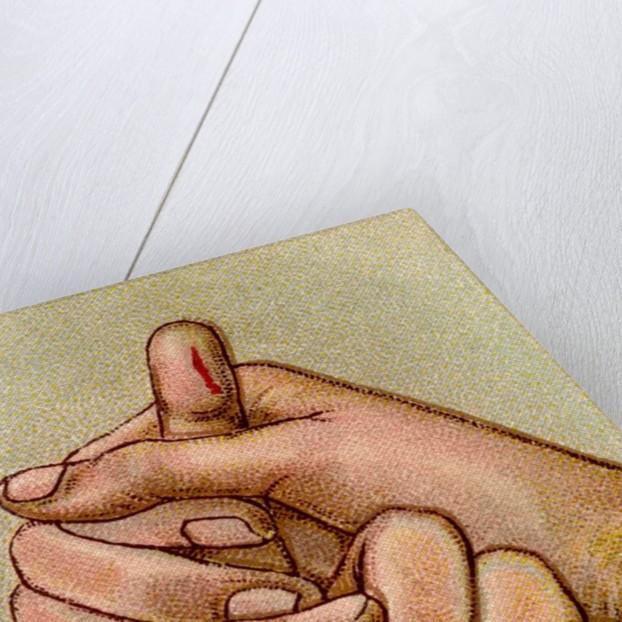 Bleeding finger by Corbis