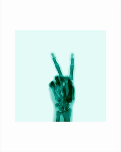 X-Ray of Hand Doing Peace Sign by Corbis