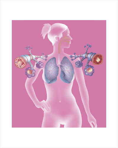 Asthma, drawing by Corbis