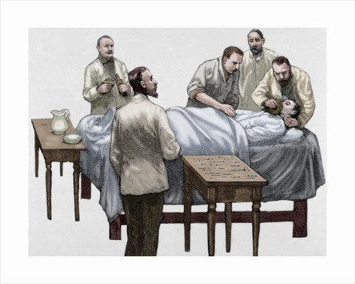 History of medicine. Chloroform anesthesia. Engraving, 19th century. Colored. by Corbis