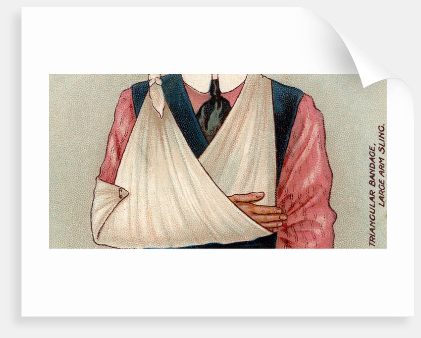 Arm in sling by Corbis