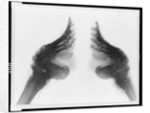 X-Ray of Bound Feet by Corbis
