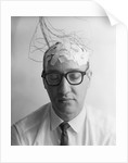1960s Patient With Wires Taped To Bald Head Testing Brain Waves For Sanity by Corbis