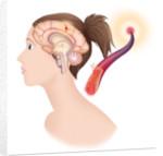 Cerebrovascular neurol. disease by Corbis