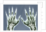 X-ray of Hands by Corbis