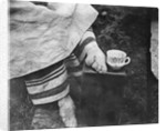Disfigured Result of Chinese Foot Binding by Corbis