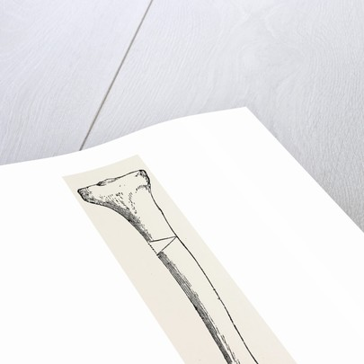 Diagram representing a curved tibia, with a wedge removed by Anonymous