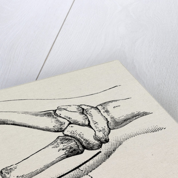 Excision of metacarpo-phalangeal joint by Anonymous