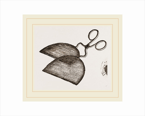 Ring-Net and Forceps by Anonymous