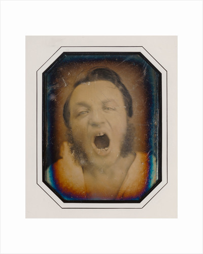 Man with Open Mouth by Anonymous
