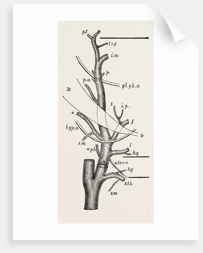 External Carotid Artery Natural Size Posters Prints By Anonymous