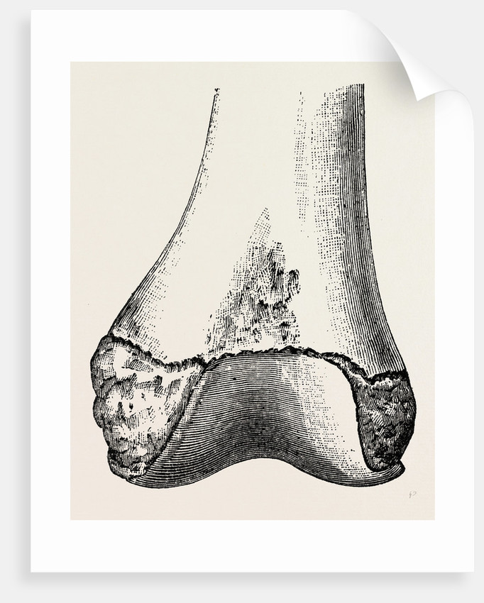 Epiphyses of the femur by Anonymous