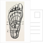 Plantar incisions by Anonymous