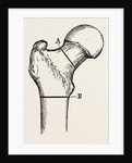Osteotomy by Anonymous