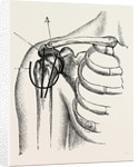 Excision of the shoulder by Anonymous