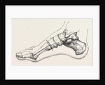 Excision of first metatarsal bone by Anonymous