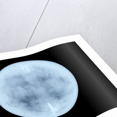Globe x-ray by John Miller