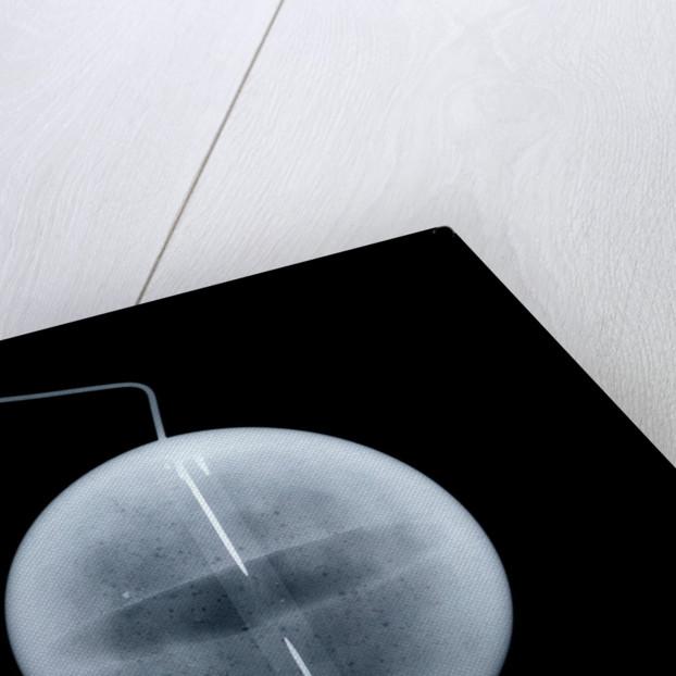 Globe x-ray by William Palmer