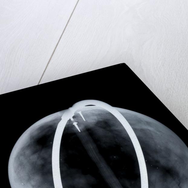 Globe x-ray by Johann Gabriel Doppelmayr