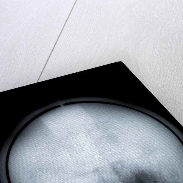 Globe x-ray by Charles Price
