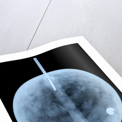Globe x-ray by William Bardin