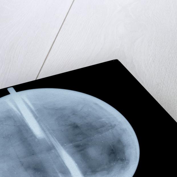 Globe x-ray by Thomas Patrick