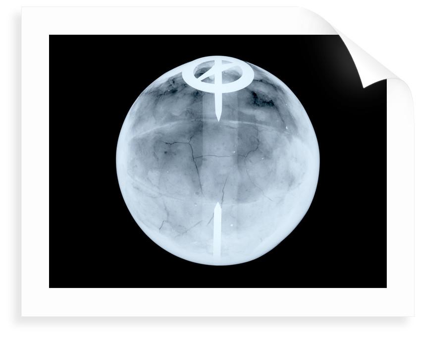 Globe x-ray by Dudley Adams