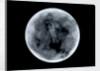 Globe x-ray by James Ferguson