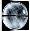 Globe x-ray by Arnold Floris van Langren