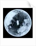 Globe x-ray by unknown