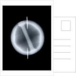 Globe x-ray by Joannes Oterschaden