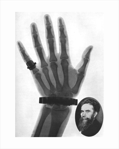 X-ray photograph of a hand by Anonymous