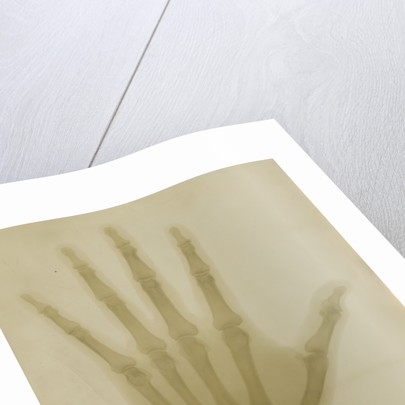 X-ray photograph of the hand of Robert Arthur Talbot Gascoyne-Cecil by Alan Archibald Campbell Swinton