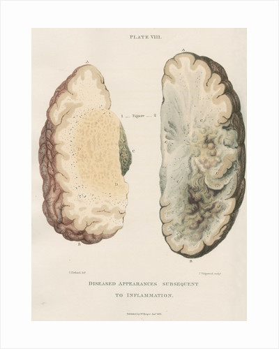 'Inflammation of the brain' by J Wedgewood