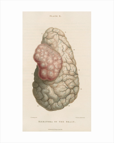 'Haematoma of the brain' by J Stewart senior