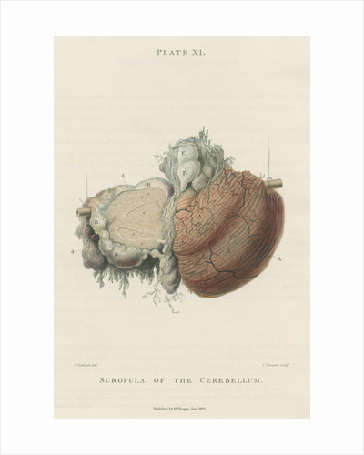 'Scrofula of the cerebellum' by J Stewart senior
