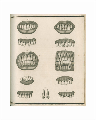 Irregularities of the teeth by Parks