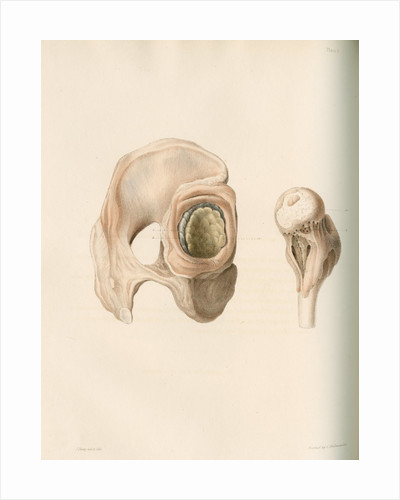 Hip and femur by G Hallmandel