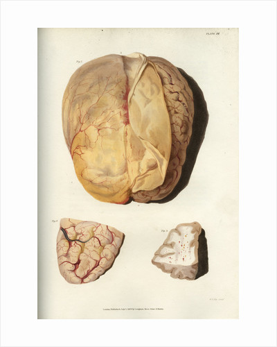 'Effects of jaundice on the brain and its membranes' by William Thomas Fry