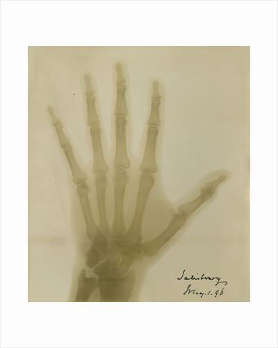 X-ray photograph of the hand of Robert Arthur Talbot Gascoyne-Cecil by Alan Archibald Campbell Swinton