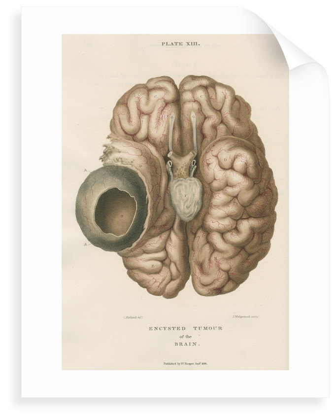 'Encysted tumour of the brain' by J Wedgewood