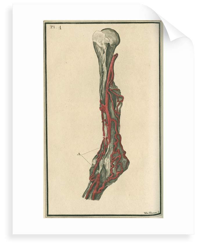 Dissection of an arm on which the operation for the Aneurism had been performed by unknown