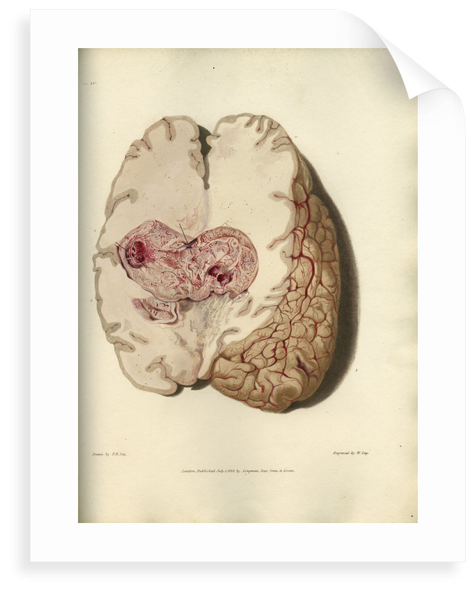 'Cyst in the brain' by William Say