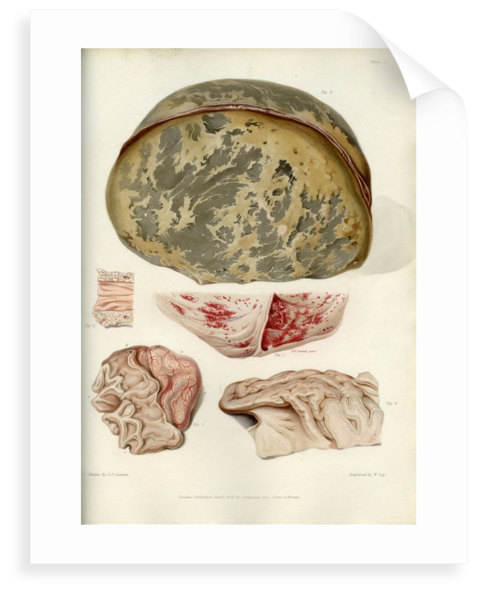 Parts of the brain including the dura mater by William Say