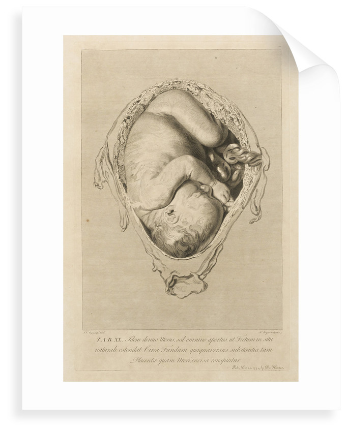 Foetus in the womb by Henry Bryer