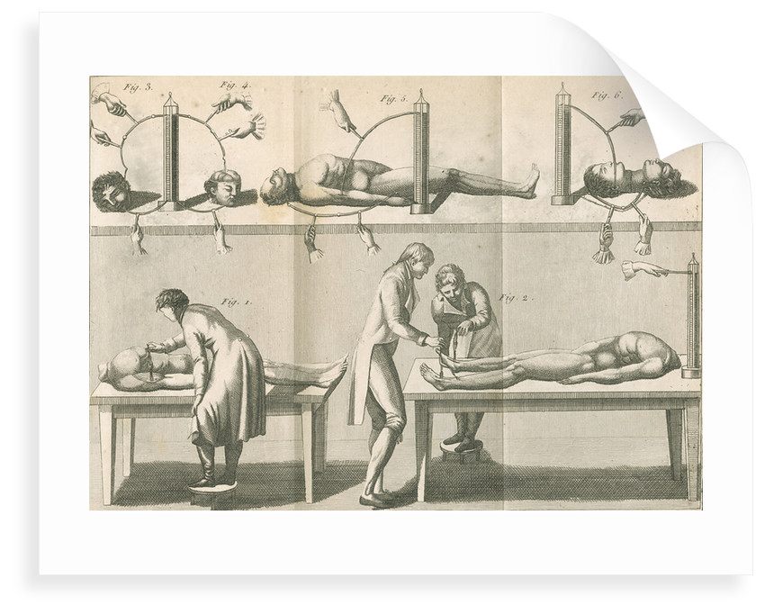 Aldini's galvanic experiments by G.M.