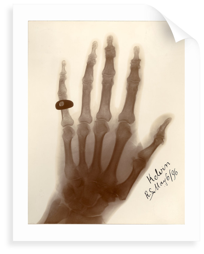 X-ray photograph of the hand of William Thomson by Alan Archibald Campbell Swinton