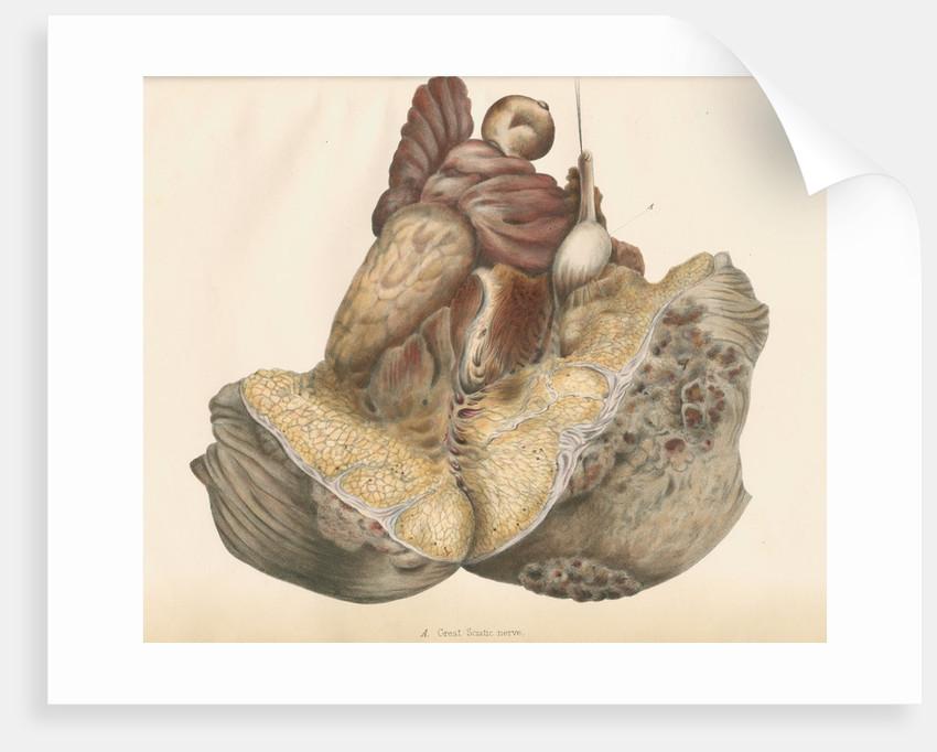 'Great Sciatic nerve' by Leonard